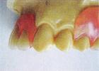 バルプラストの入れ歯